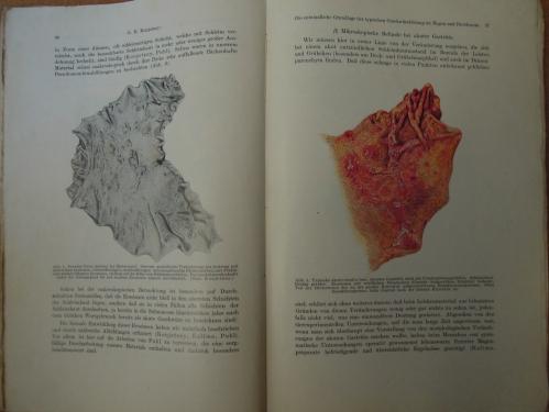 Die Entzündliche Grundlage Der Typischen Geschwürsbildung Im Magen Und Duodenum